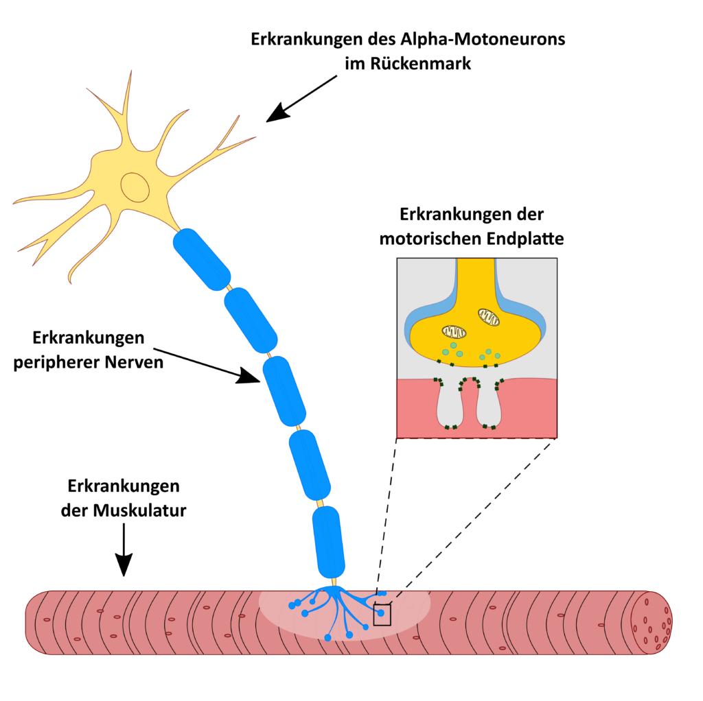 Motoneuron